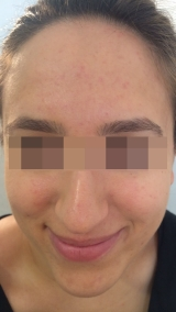 <h5>Acne (after treatment), patient No 77001</h5><p>This photo shows patient number 77001 after treatment. We applied HPDC homeopathic treatment medications which removed the acne completely. Since no drugs or harmful chemicals were used, there were no side-effects or marks left on the affected area, or elsewhere. </p>