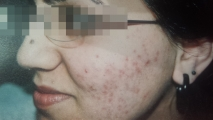 <h5>Acne (before treatment), patient No 77003</h5><p>This photo shows patient number 77003 before treatment. The patient then went through our HPDC homeopathic acne treatment for several sessions. </p>
