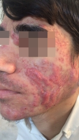 <h5>Acne (before treatment), patient No 77002</h5><p>This photo shows patient number 77002 before treatment. The patient then went through our HPDC homeopathic acne treatment for several sessions. </p>