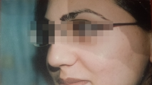 <h5>Acne (after treatment),patient No 77003</h5><p>This photo shows patient number 77003 after treatment. We applied HPDC homeopathic treatment medications which removed the (disease name) completely. Since no drugs or harmful chemicals were used, there were no side-effects or marks left on the affected area, or elsewhere. </p>