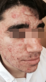 <h5>Acne (after treatment), patient No 77002</h5><p>This photo shows patient number 77002 after treatment. We applied HPDC homeopathic treatment medications which removed the acne completely. Since no drugs or harmful chemicals were used, there were no side-effects. There are some marks left on the affected area but they will disappear with time.  </p>