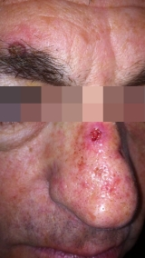 <h5>Basal Cell Carcinoma (before treatment),patient No 77001</h5><p>This photo shows patient number 77001 before treatment. The patient then went through our HPDC homeopathic basal cell carcinoma treatment for several sessions. </p>