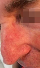 <h5>Basal Cell Carcinoma (after treatment), patient No 77002</h5><p>This photo shows patient number 77002 after treatment. We applied HPDC homeopathic treatment medications which removed the basal cell carcinoma completely. Since no drugs or harmful chemicals were used, there were no side-effects or marks left on the affected area, or elsewhere. </p>