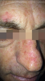 <h5>Basal Cell Carcinoma (after treatment), patient No 77001</h5><p>This photo shows patient number 77001 after treatment. We applied HPDC homeopathic treatment medications which removed the basal cell carcinoma completely. Since no drugs or harmful chemicals were used, there were no side-effects. The slight marks may be left but even they will fade away naturally with time.</p>