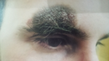 <h5>Birthmark (before removal), patient No 77001</h5><p>This image shows patient number 77001 having a birthmark right above his eye. The patient then went through our HPDC homeopathic birthmark removal treatment for several sessions. </p>