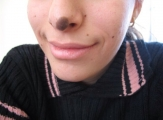 <h5>Birthmark (before removal), patient No 77002</h5><p>This image shows patient number 77002 with a birthmark on her nose before treatment.The patient then went through our HPDC homeopathic birthmark removal treatment for several sessions. </p>