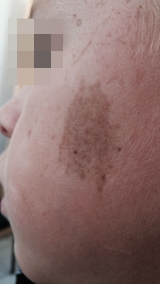 <h5>Birthmark (before removal), patient No 77003</h5><p>This image shows patient number 77003 before treatment.The patient then went through our HPDC homeopathic birthmark removal treatment for several sessions. </p>