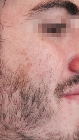 <h5>Birthmark (before removal), patient No 77004</h5><p>This image shows patient number 77004 before treatment.The patient then went through our HPDC homeopathic birthmark removal treatment for several sessions. </p>