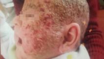 <h5>Dermatitis (before treatment), patient No 77001</h5><p>This photo shows patient number 77001 before treatment. The patient then went through our HPDC homeopathic dermatitis treatment for several sessions. </p>