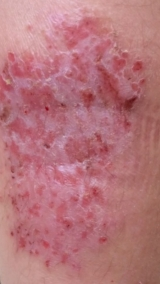 <h5>Eczema (before treatment), patient number 77003</h5><p>This photo shows patient number 77003 before treatment. The patient then went through our HPDC homeopathic eczema treatment for several sessions. </p>