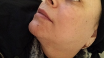 <h5>Hormonal Pigmentation (before treatment), patient number 77004</h5><p>This photo shows patient number 77004 having hormonal pigmentation before treatment. The patient then went through our HPDC homeopathic hormonal pigmentation treatment for several sessions.  </p>