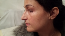 <h5>Hormonal Pigmentation (before treatment), patient number 77033</h5><p>This photo shows patient number 77033 having hormonal pigmentation before treatment. The patient then went through our HPDC homeopathic hormonal pigmentation treatment for several sessions. </p>