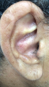 <h5>Keratin (after treatment), patient No 77001</h5><p>This photo shows patient number 77001 after treatment. We applied HPDC homeopathic treatment medications which removed the keratin completely. Since no drugs or harmful chemicals were used, there were no side-effects or marks left on the affected area, or elsewhere. </p>