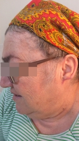 <h5>Keloid (after treatment), patient No 77002</h5><p>This photo shows patient number 77002 after treatment. We applied HPDC homeopathic treatment medications which removed the keloid completely. Since no drugs or harmful chemicals were used, there were no side-effects or marks left on the affected area, or elsewhere. </p>