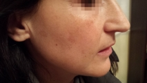 <h5>Hormonal Pigmentation (during treatment), patient No 77033</h5><p>This photo shows patient number 77033 during treatment. Only natural and homeopathic methods are used to treat hormonal pigmentation.</p>