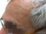 <h5>Melanoma (after treatment), patient No 77001</h5><p>This photo shows patient number 77001 after treatment. We applied HPDC homeopathic treatment medications which removed the melanoma completely. Since no drugs or harmful chemicals were used, there were no side-effects or marks left on the affected area, or elsewhere. </p>