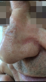 <h5>Melanoma (after treatment), patient No 77002</h5><p>This photo shows patient number 77002 after treatment. We applied HPDC homeopathic treatment medications which removed the melanoma completely. Since no drugs or harmful chemicals were used, there were no side-effects or marks left on the affected area, or elsewhere. </p>