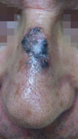 <h5>Melanoma (before treatment), patient No 77002</h5><p>This photo shows patient number 77002 before treatment. The patient then went through our HPDC homeopathic melanoma removal treatment for several sessions. </p>