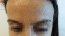 <h5>Milia (before treatment), patient No 770_-</h5><p>This photo shows patient number 770_- before treatment. The patient then went through our HPDC homeopathic milia removal treatment for several sessions. </p>