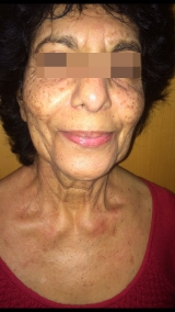 <h5>Moles (after treatment), patient No 77001</h5><p>This photo shows patient number 77001 after treatment. We applied HPDC homeopathic treatment medications which removed the moles completely. Since no drugs or harmful chemicals were used, there were no side-effects or marks left on the affected area, or elsewhere. </p>