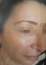 <h5>Moles (after treatment), patient No 77003</h5><p>This photo shows patient number 77003 after treatment. We applied HPDC homeopathic treatment medications which removed the moles completely. Since no drugs or harmful chemicals were used, there were no side-effects or marks left on the affected area, or elsewhere. </p>