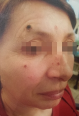 <h5>Moles (before treatment), patient No 77003</h5><p>This photo shows patient number 77003 before treatment. The patient then went through our HPDC homeopathic moles treatment for several sessions. </p>