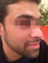 <h5>Moles (after treatment), patient No 77004</h5><p>This photo shows patient number 77004 after treatment. We applied HPDC homeopathic treatment medications which removed the moles completely. Since no drugs or harmful chemicals were used, there were no side-effects or marks left on the affected area, or elsewhere. </p>