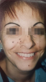 <h5>Moles (before treatment), patient No 77009</h5><p>This photo shows patient number 77009 before treatment. The patient then went through our HPDC homeopathic moles treatment for several sessions. </p>