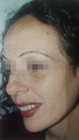 <h5>Moles (after treatment), patient No 77008</h5><p>This photo shows patient number 77008 after treatment. We applied HPDC homeopathic treatment medications which removed the moles completely. Since no drugs or harmful chemicals were used, there were no side-effects or marks left on the affected area, or elsewhere. </p>