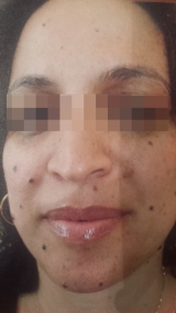 <h5>Moles (before treatment), patient No 77010</h5><p>This photo shows patient number 77010 before treatment. The patient then went through our HPDC homeopathic moles treatment for several sessions. </p>