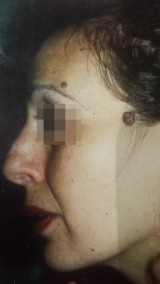 <h5>Moles (before treatment), patient No 77008</h5><p>This photo shows patient number 77008 before treatment. The patient then went through our HPDC homeopathic moles treatment for several sessions. </p>