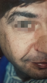 <h5>Moles (after treatment), patient No 77013</h5><p>This photo shows patient number 77013 after treatment. We applied HPDC homeopathic treatment medications which removed the moles completely. Since no drugs or harmful chemicals were used, there were no side-effects or marks left on the affected area, or elsewhere. </p>