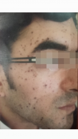 <h5>Moles (before treatment), patient No 77011</h5><p>This photo shows patient number 77011 before treatment. The patient then went through our HPDC homeopathic moles treatment for several sessions. </p>