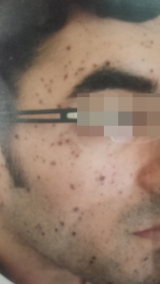 <h5>Moles (during treatment), patient No 77011</h5><p>This photo shows patient number 77011 during treatment. Only natural and homeopathic methods are used to remove the moles</p>