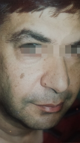 <h5>Moles (during treatment), patient No 77013</h5><p>This photo shows patient number 77013 during treatment. Only natural and homeopathic methods are used to remove the moles</p>