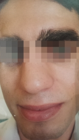 <h5>Moles (after treatment), patient No 77012</h5><p>This photo shows patient number 77012 after treatment. We applied HPDC homeopathic treatment medications which removed the moles completely. Since no drugs or harmful chemicals were used, there were no side-effects or marks left on the affected area, or elsewhere. </p>