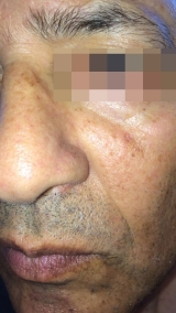 <h5>Moles (after treatment), patient No 77015</h5><p>This photo shows patient number 77015 after treatment. We applied HPDC homeopathic treatment medications which removed the moles completely. Since no drugs or harmful chemicals were used, there were no side-effects or marks left on the affected area, or elsewhere. </p>