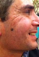 <h5>Moles (before treatment), patient No 77016</h5><p>This photo shows patient number 77016 before treatment. The patient then went through our HPDC homeopathic moles treatment for several sessions. </p>