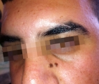 <h5>Moles (before treatment), patient No 77017</h5><p>This photo shows patient number 77017 before treatment. The patient then went through our HPDC homeopathic moles treatment for several sessions. </p>