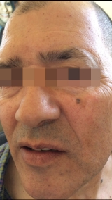 <h5>Moles (before treatment), patient No 77015</h5><p>This photo shows patient number 77015 before treatment. The patient then went through our HPDC homeopathic moles treatment for several sessions. </p>