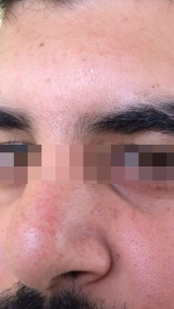 <h5>Moles (after treatment), patient No 77017</h5><p>This photo shows patient number 77017 after treatment. We applied HPDC homeopathic treatment medications which removed the moles completely. Since no drugs or harmful chemicals were used, there were no side-effects or marks left on the affected area, or elsewhere. </p>