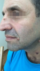 <h5>Moles (before treatment), patient No 77020</h5><p>This photo shows patient number 77020 before treatment. The patient then went through our HPDC homeopathic moles treatment for several sessions. </p>
