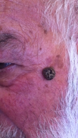 <h5>Moles (before treatment), patient No 77023</h5><p>This photo shows patient number 77023 before treatment. The patient then went through our HPDC homeopathic moles treatment for several sessions. </p>