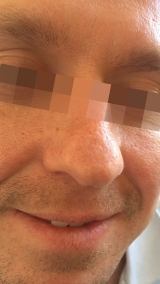<h5>Moles (after treatment), patient No 77021</h5><p>This photo shows patient number 77021 after treatment. We applied HPDC homeopathic treatment medications which removed the moles completely. Since no drugs or harmful chemicals were used, there were no side-effects or marks left on the affected area, or elsewhere. </p>