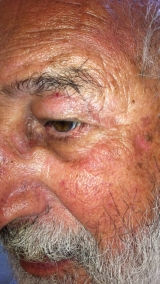 <h5>Moles (after treatment), patient No 77023</h5><p>This photo shows patient number 77023 after treatment. We applied HPDC homeopathic treatment medications which removed the moles completely. Since no drugs or harmful chemicals were used, there were no side-effects or marks left on the affected area, or elsewhere. </p>