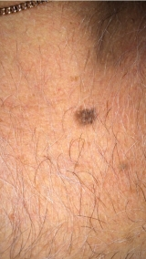 <h5>Moles (before treatment), patient No 77022</h5><p>This photo shows patient number 77022 before treatment. The patient then went through our HPDC homeopathic moles treatment for several sessions. </p>