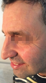 <h5>Moles (after treatment), patient No 77020</h5><p>This photo shows patient number 77020 after treatment. We applied HPDC homeopathic treatment medications which removed the moles completely. Since no drugs or harmful chemicals were used, there were no side-effects or marks left on the affected area, or elsewhere. </p>