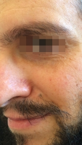 <h5>Nevus (after treatment), patient No 77002</h5><p>This photo shows patient number 77002 after treatment. We applied HPDC homeopathic treatment medications which removed the nevus completely. Since no drugs or harmful chemicals were used, there were no side-effects or marks left on the affected area, or elsewhere. </p>