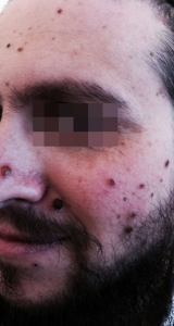 <h5>Nevus (before treatment), patient No 77002</h5><p>This photo shows patient number 77002 before treatment. The patient then went through our HPDC homeopathic nevus treatment for several sessions. </p>