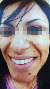 <h5>Nevus (before treatment), patient No 77001</h5><p>This photo shows patient number 77001 before treatment. The patient then went through our HPDC homeopathic nevus treatment for several sessions. </p>